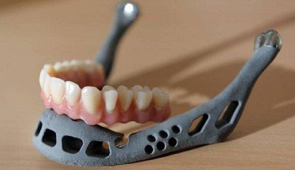 3D Printed Bones 1