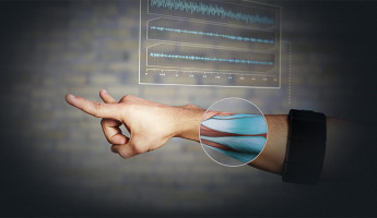 Thalmic Myo Armband: a Gesture Control Revolution