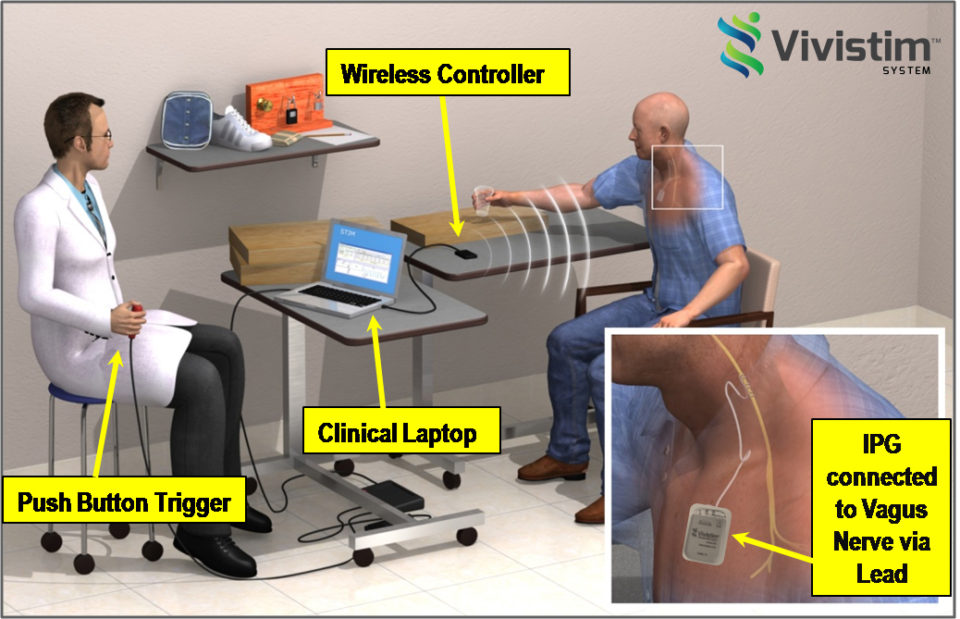 vivstem medical implant for stroke