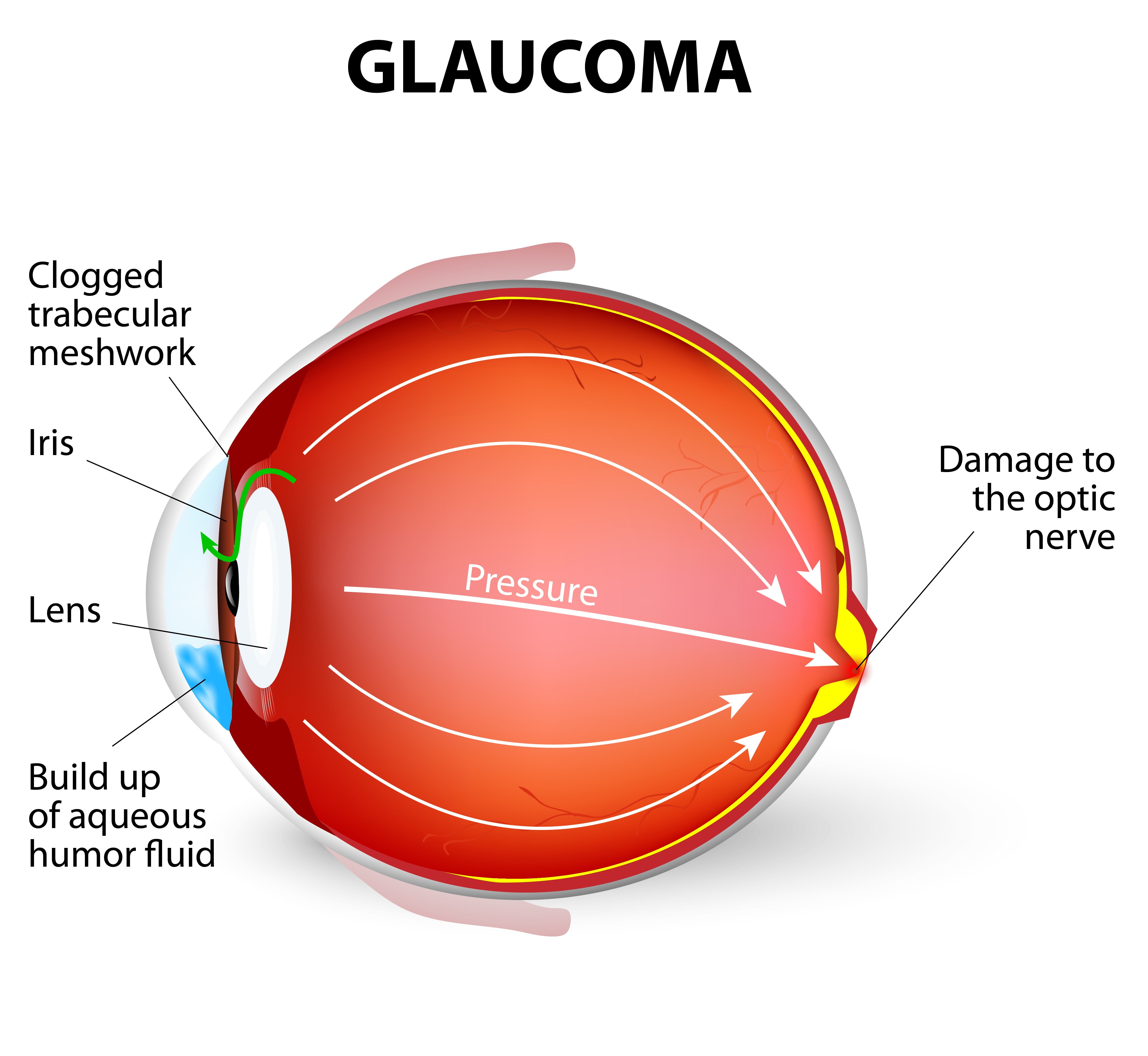 Glaucoma Research – virtual reality
