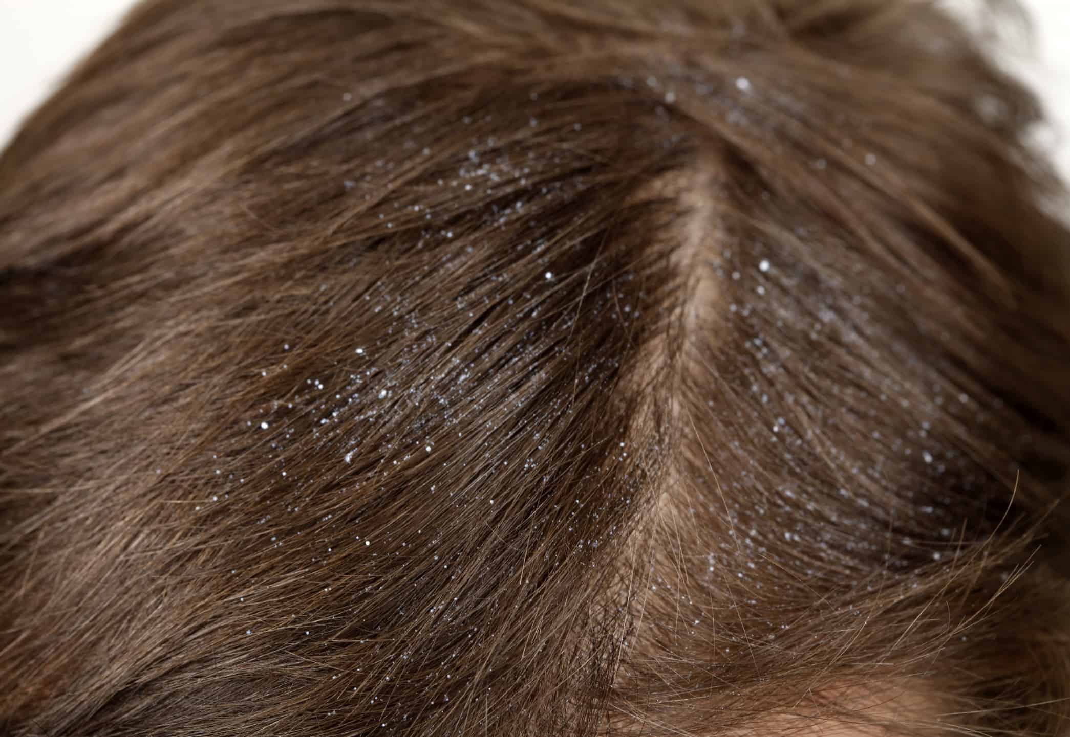 Dandruff – how to choose shampoo