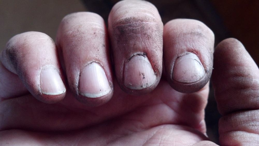 Dirty Nails – fashion mistake