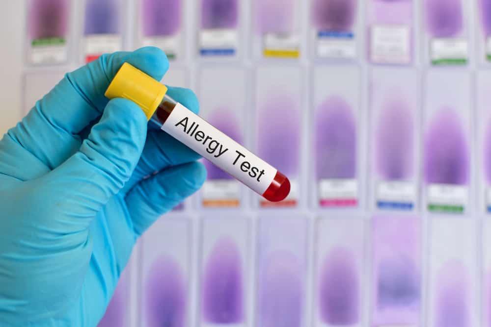 Know Thyself – reduce allergies