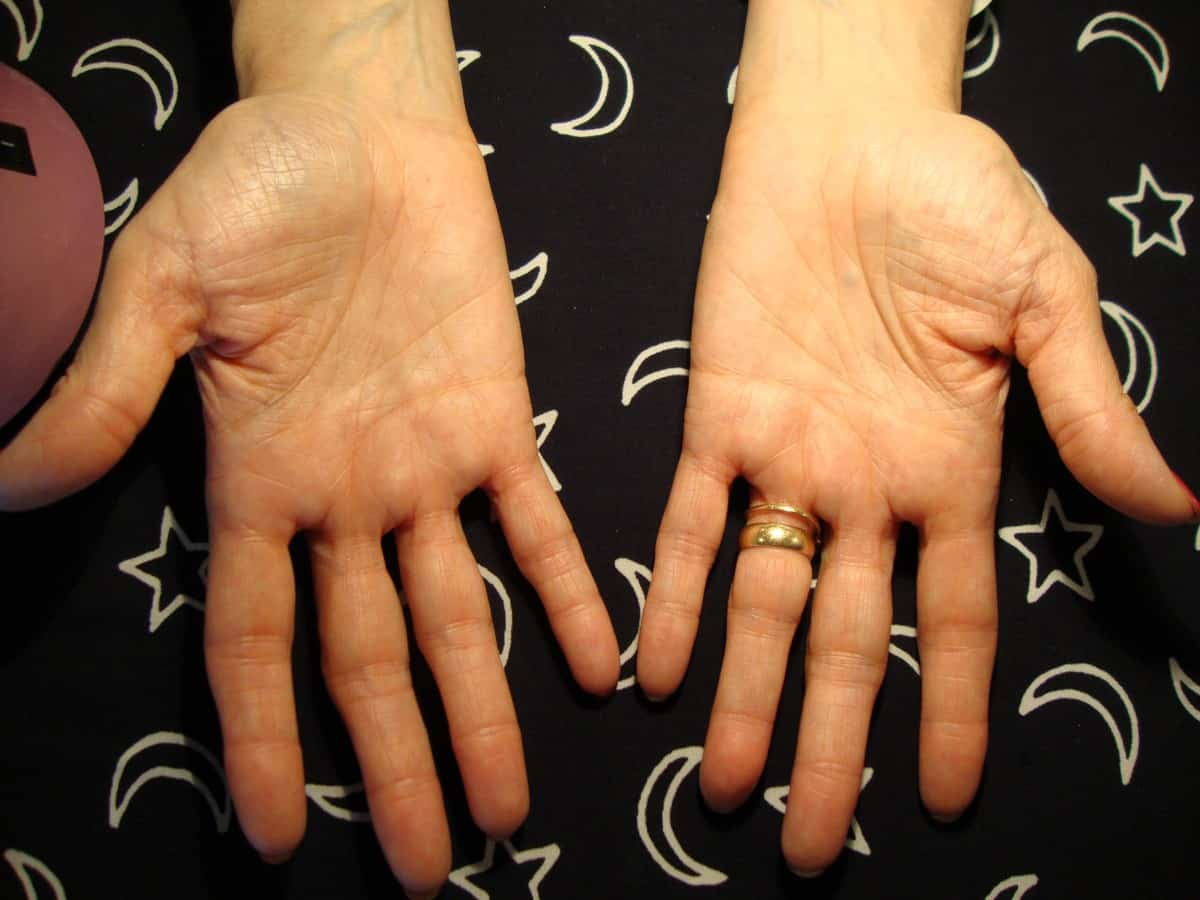 Marfan Syndrome – human mutation