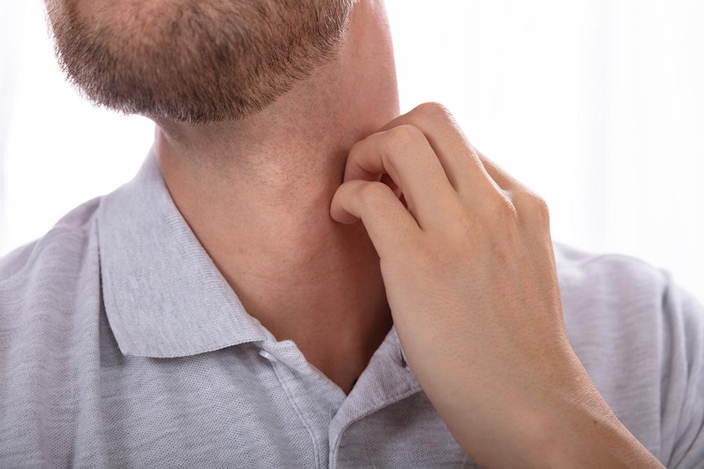 Risk factors for seborrheic dermatitis and beard fungus